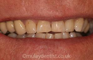 teethwhitening-after-1.jpg