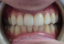 Orthodontics & Whitening