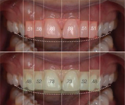 Digital Smile Process
