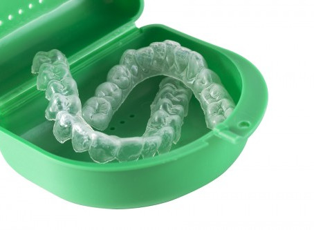 Orthodontic mouthguards – the benefits