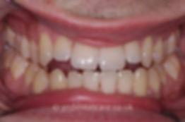 teeth-whitening-b.jpg