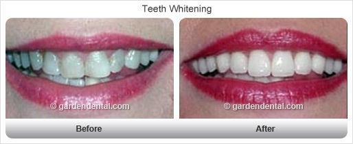 teethwhitening-bf-af3.jpg