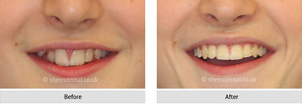 before-after-ortho61.jpg