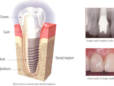 What are Dental Implants and how can they benefit YOU?