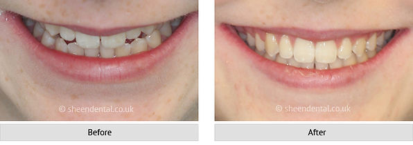 before-after-ortho35.jpg