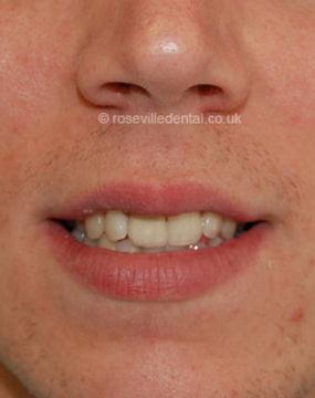 Smile-Restoration-face-1.jpg
