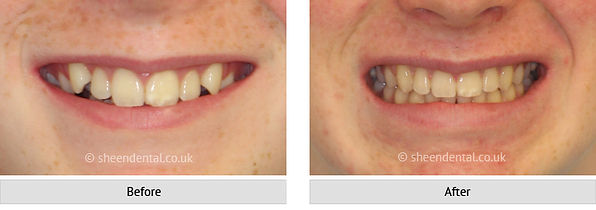 before-after-ortho1