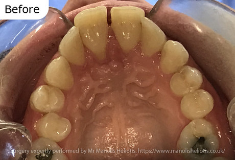 Case report 1: Short lower jaw leading to prominent teeth and a traumatic bite