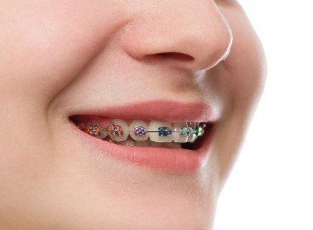 Braces – frequently asked questions