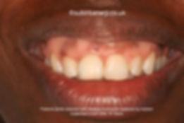 Dental Implants in Ealing