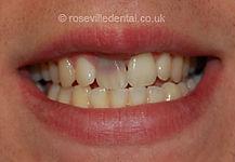 Smile-Restoration-1-before].jpg