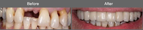 implant12.jpg