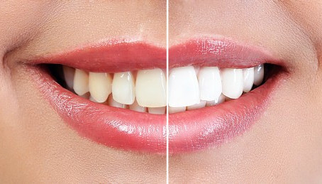Cosmetic dentistry can change your life