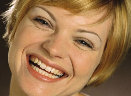 5 Great Reasons for Choosing Dental Implants in Richmond