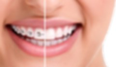 conventional-fixed-braces.png