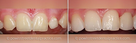dental-implants-case-1.jpg