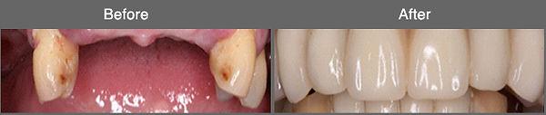 implant10.jpg