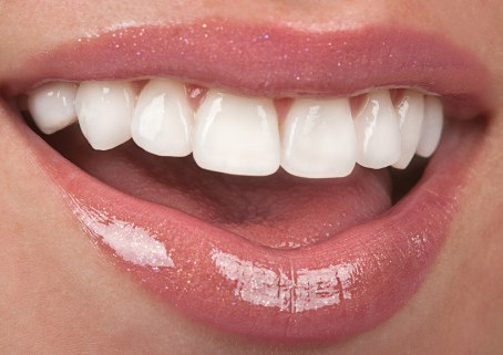 How can a smile makeover benefit me?