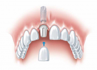 Missing Teeth- What Are Your Options!!