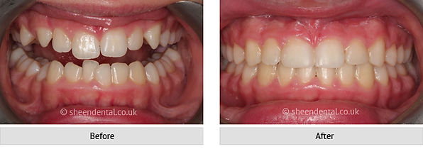 before-after-ortho26