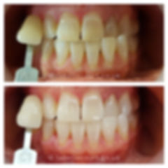 before-after-1-small.jpg