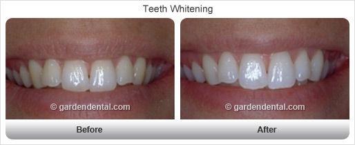 teethwhitening-bf-af2.jpg