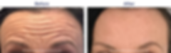 before-after-2.png