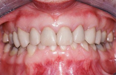 healthy-gums-img-2.jpg