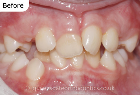 Orthodontic treatment using fixed braces and, the extraction of adult premolar teeth, to correct crowded, rotated teeth