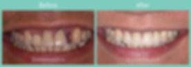 implant-ba2.jpg