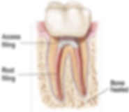 rootcanaltooth2.png