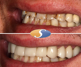 Smile makeover - all-ceramic crowns-2