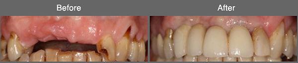 implant5.jpg
