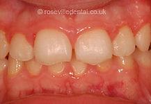 Orthodontics-before.jpg