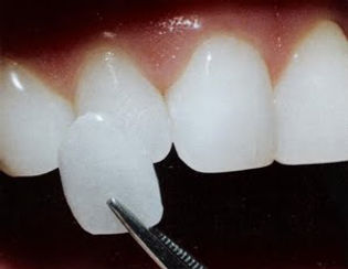 cosmetic-dentistry-veneers.jpg