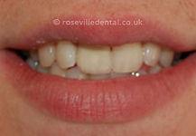Smile-Restoration-1-after.jpg