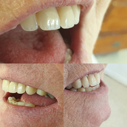 Campbell Denture Clinic Essential Dentur