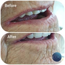 Campbell Denture Clinic New dentures - P