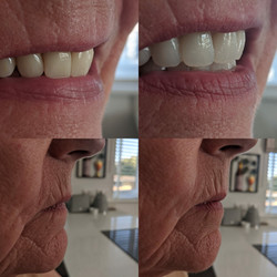 Campbell Denture Clinic Cosmetic Denture