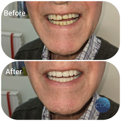 Campbell Denture Clinic New dentures Pet