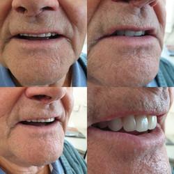 Campbell Denture Clinic Private Denture