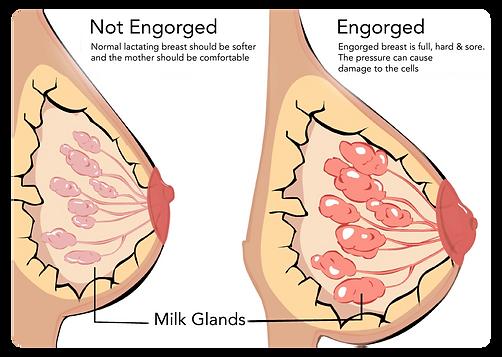 Breast engorgement milk
