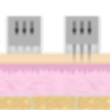 microneedling PNG.png