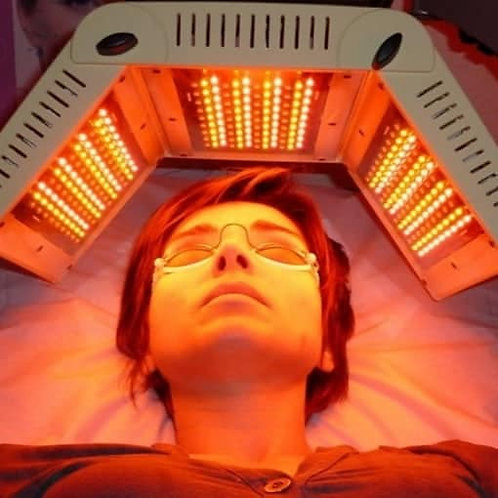 (Acompte) Micro-needling + luminothérapie par LED
