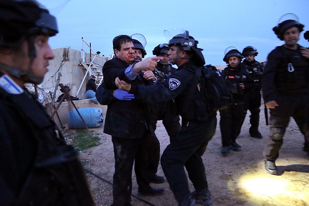 اصابة النائب أيمن عودة بنيران الشرطة الاسرائيلية