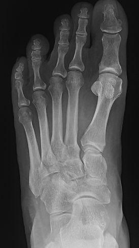 Midfoot arthritis treated by Dev Mahadevan