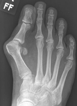 Severe bunion deformity treated by Dev Mahadevan, Reading Berkshire
