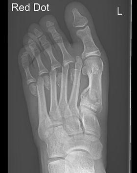 Multiple foot fractures treated by Mr Dev Mahadevan, Reading, Berkshire