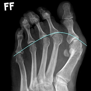 Toe deformity with metatarsalgia corrected with multiple Weil's osteotomies by Dev Mahadevan, Reading