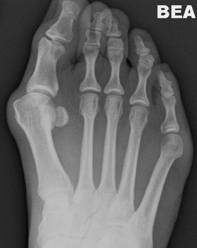 Bunion deformity treated by Dev Mahadevan in Reading Berkshire